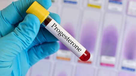 progesterone for preterm labor