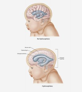 Hydrocephalus-In-Babies-Causes,-Symptoms-Treatment