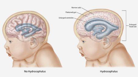 Hydrocephalus In Infants