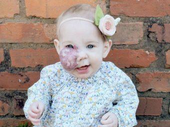 Mom Defends Daughter's Birthmark