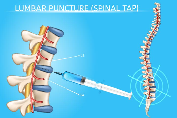 What Is Lumbar Puncture