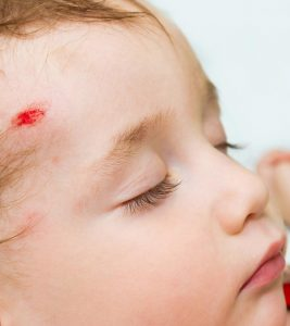 Concussion In Babies