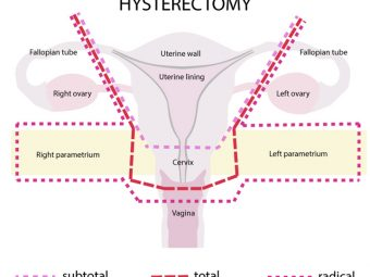 Pregnancy After Hysterectomy: Odds, Risks, And Complications