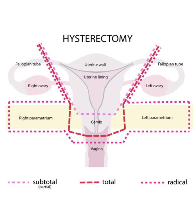 Can You Get Pregnant After Hysterectomy