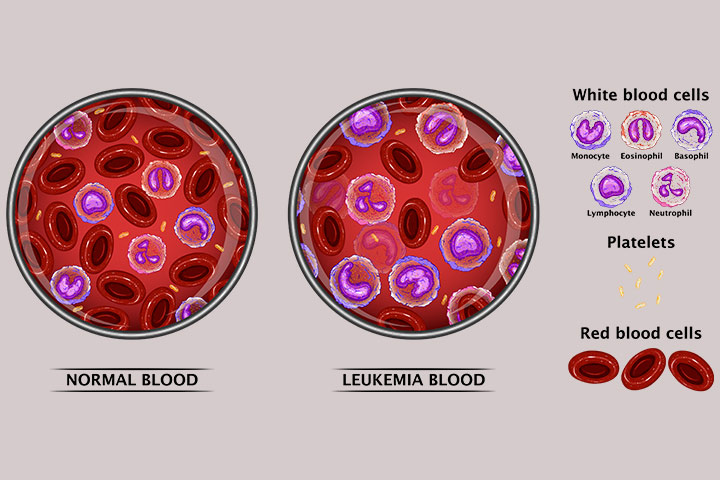 Leukemia In Teens Symptoms Treatment
