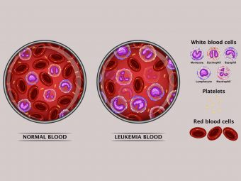 Leukemia In Teens: Symptoms, Treatment, And Risk Factors