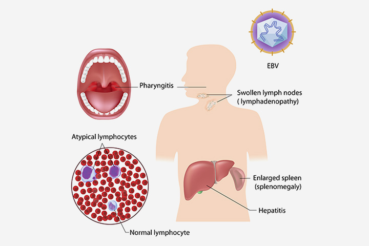 Mononucleosis In Teens