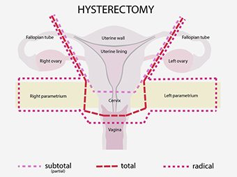 Is Pregnancy Possible After A Hysterectomy?