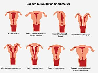 Uterine Abnormalities During Pregnancy - Classification, Symptoms & Treament