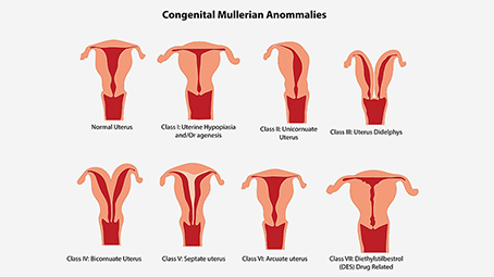 Uterine Abnormalities