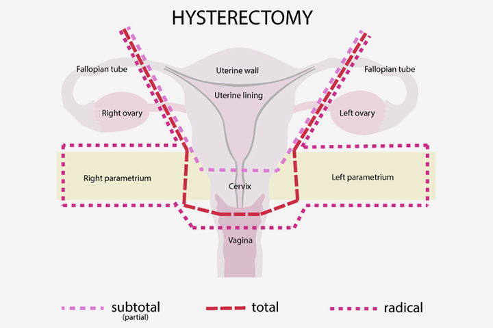 Post partial hysterectomy sexuality and reproduction