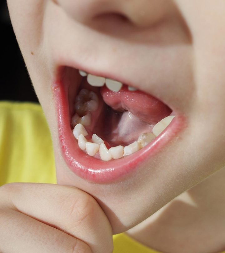 6 Causes Of Hyperdontia (Extra Teeth) In Children And Treatment Options1