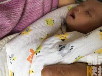 Shocking! Newborn Boy Carries A Fetus Inside