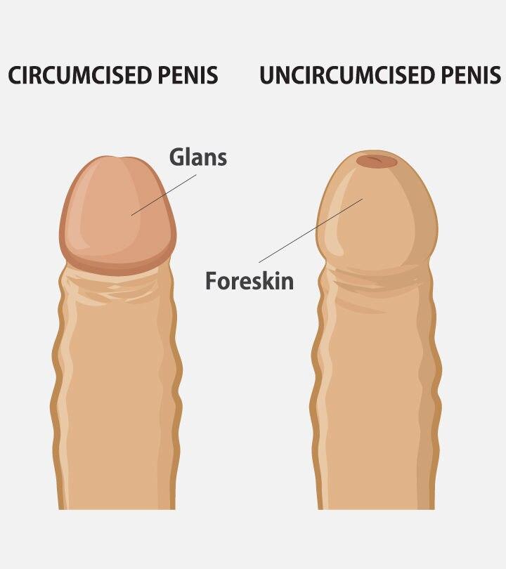 Teenage Circumcision