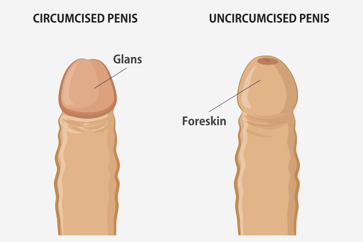Pictures of uncircumcised vs circumcised