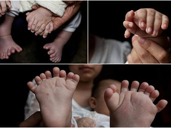Baby Born With 31 Fingers And Toes In China