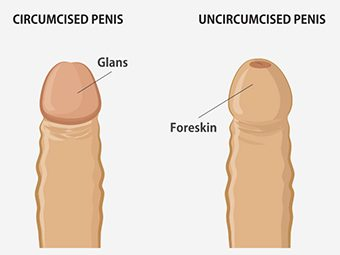 Teenage Circumcision – Facts, Effects And Recovery