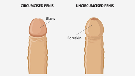 How to have sex with an uncircumsized penis