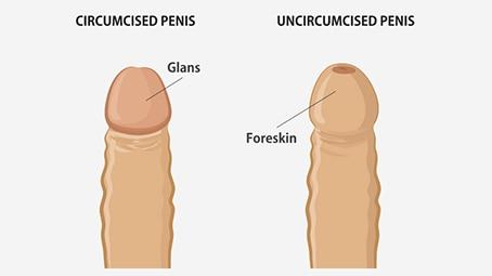 healthy circumcised penis
