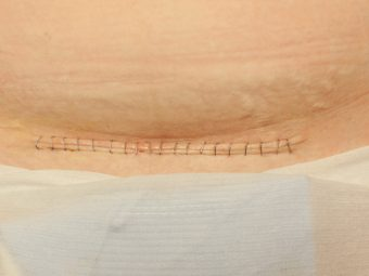 14 FAQs About C-Section Scars