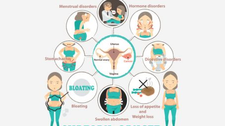 Symptoms Of Ovarian Cancer You Should Not Ignore