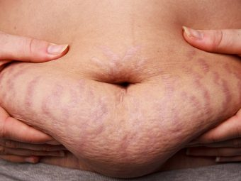 How To Use Vicks VapoRub To Get Rid Of Stretch Marks?