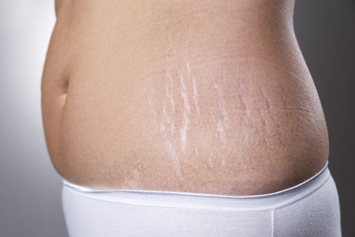 Is It Possible To Remove Stretch Marks