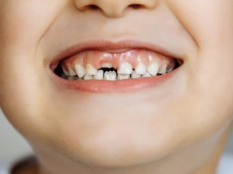 Why You Should Keep Your Baby's Milk Teeth
