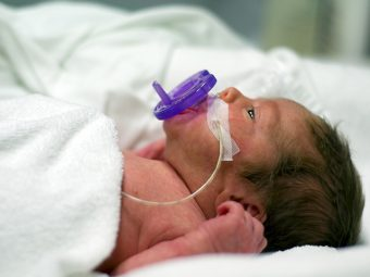 Worried About Premature Birth? Simple Pointers To Prevent It