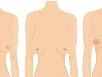 Why Breasts Tend To Droop After Breastfeeding And How To Prevent It
