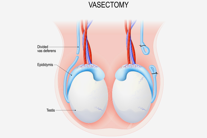 How Is Vasectomy Done In Men