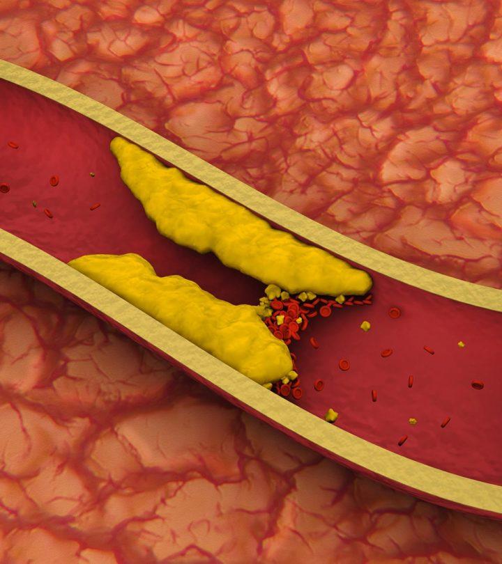 Blood Clots After Birth