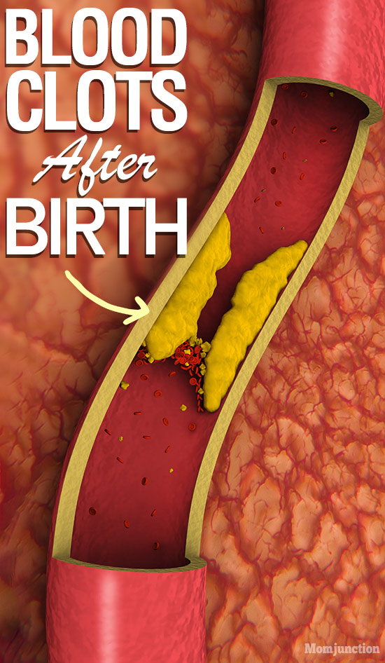 Blood Clots After Birth: Causes, Symptoms And Treatment ...