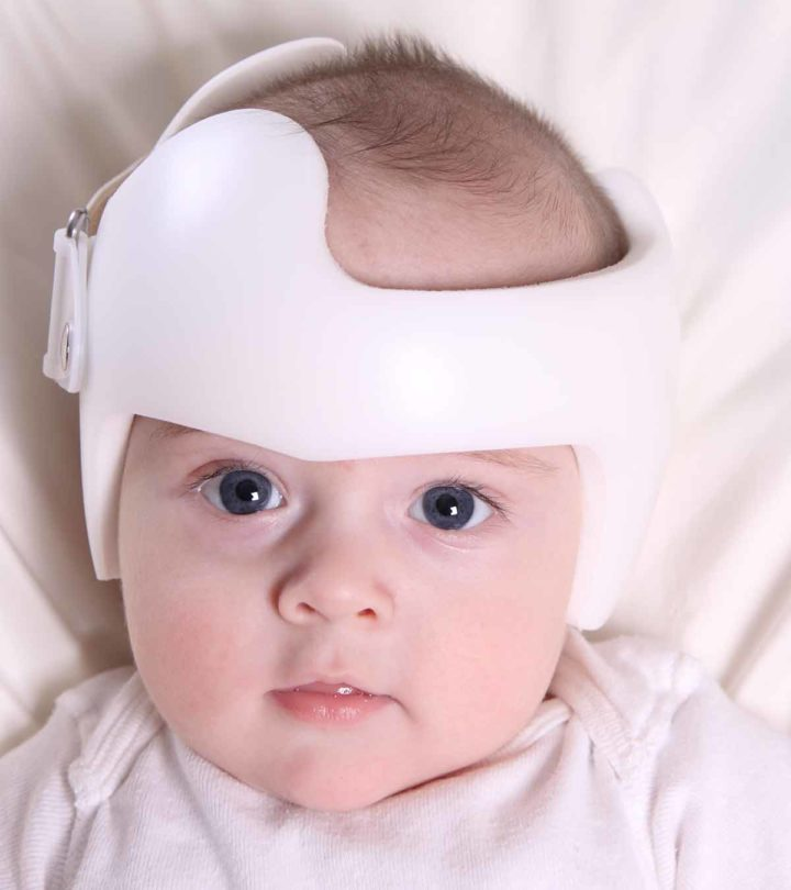 Flat Head Syndrome(Plagiocephaly) Causes, Symptoms And Treatment