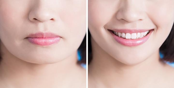 Dimple Surgery