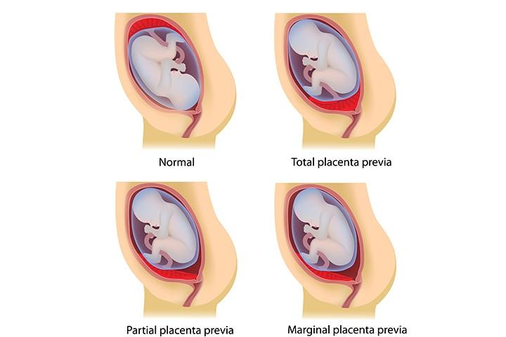 Types of Pleasantia Previa