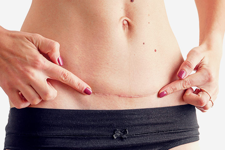 C-Section Scar Infection Causes, Types, Signs And Treatment