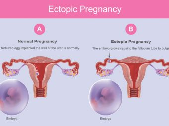 Ectopic Pregnancy: Causes, Symptoms And Treatment