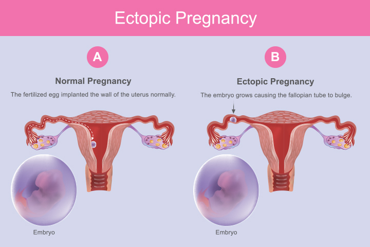 Ectopic Pregnancy Causes, Symptoms And Treatment