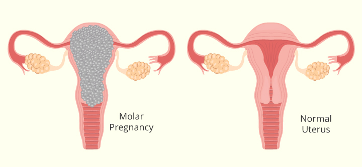 Molar Pregnancy Symptoms, Causes And Treatment