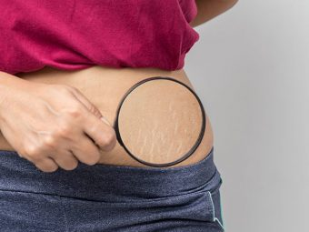 4 Myths Related To Stretch Marks: And A Solution That Actually Works!
