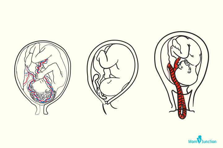 Cord Prolapse Causes, Diagnosis And Management
