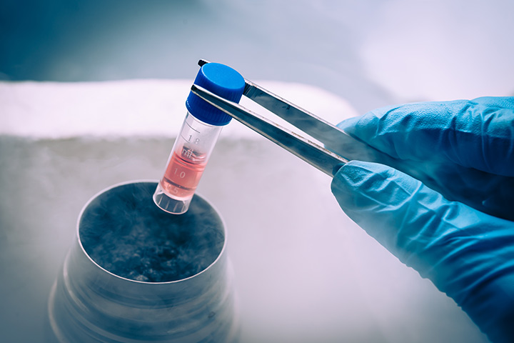 Frozen Embryo Transfer: Why And How Is It Done?