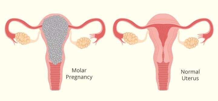 Molar Pregnancy Kya Hai