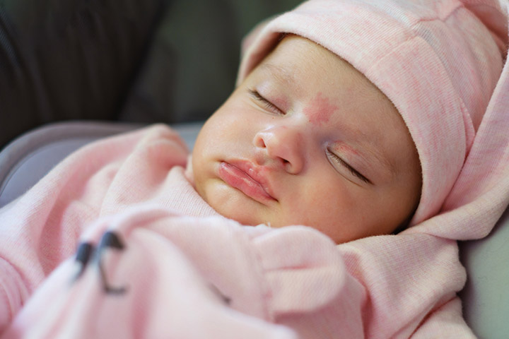 Whereas pigmented birthmarks are a result of clusters of pigmented cells