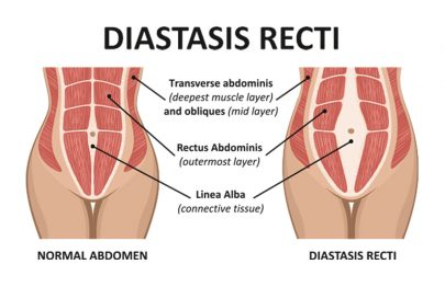 Diastasis Recti: Causes Of Ab Seperation During And After Pregnancy