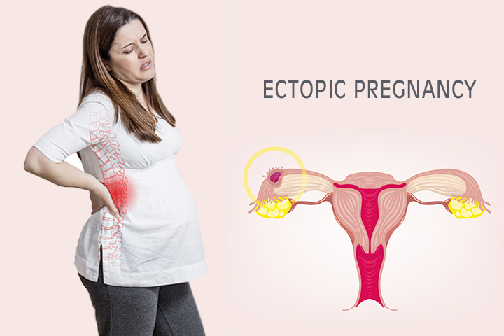 Ectopic Pregnancy Meaning In Telugu
