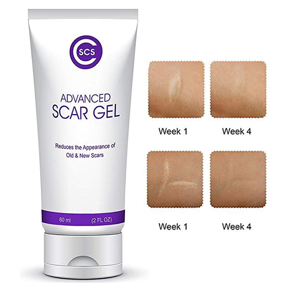 CSCS Advanced Scar Gel  Pregnant Women