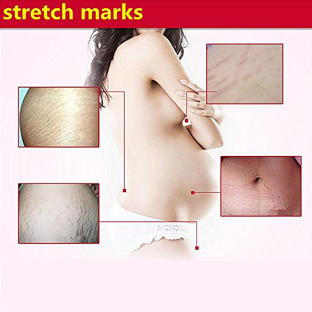Fission Herbal Pregnancy Stretch Mark Removal Cream