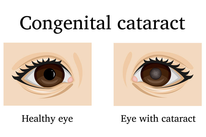 Cataract In Babies Eye In Hindi-1